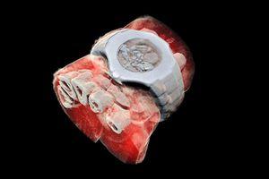 Lợi ích không ngờ của công nghệ chụp X-quang 3D màu