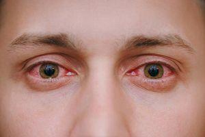 Làm gì khi có hiện tượng đỏ mắt?