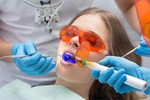 Những điều cần cân nhắc trước khi tẩy trắng răng bằng laser