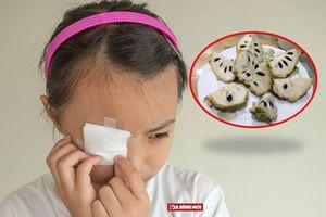Bác sĩ nhãn khoa: Dung dịch hạt na không khác gì hóa chất bắn vào mắt