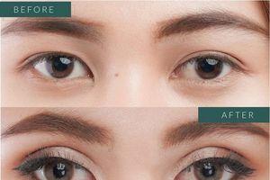 Chuyên gia khoa mắt tại Viện thẩm mỹ D'Vincy đưa ra một số giải pháp khắc phục cắt mí lỗi