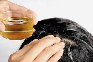 Rụng tóc, hói đầu không còn là nỗi lo với 5 phương pháp đơn giản