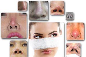 Chuyên gia tại Thẩm mỹ viện D'Vincy nói gì về phẫu thuật thẩm mỹ mũi hỏng?