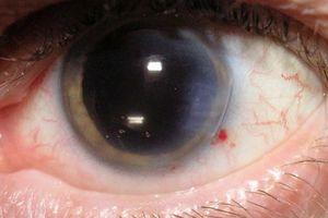 Ung thư võng mạc mắt nguy hiểm thế nào?