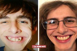 19 hình ảnh trước và sau khiến bạn sửng sốt vì bất ngờ, muốn xinh cứ niềng răng đi