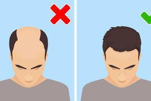 8 dấu hiệu cảnh báo sớm chứng thoái hóa cơ bắp